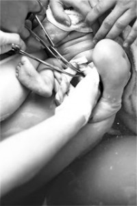 cutting the umbilical cord, photo credit Breathtaking Photography